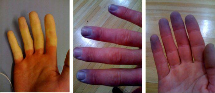Vibration White Finger